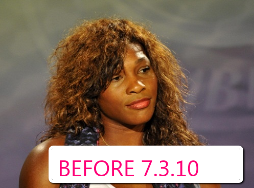 Did Serena Williams Have Nose Job or Other Plastic Surgery? Black ...
