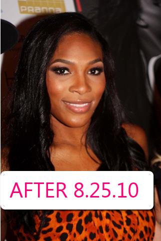 Did Serena Williams Have Plastic Surgery